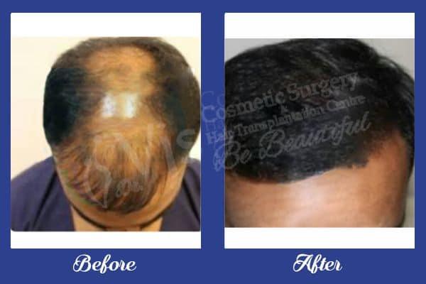 hair transplant in India
