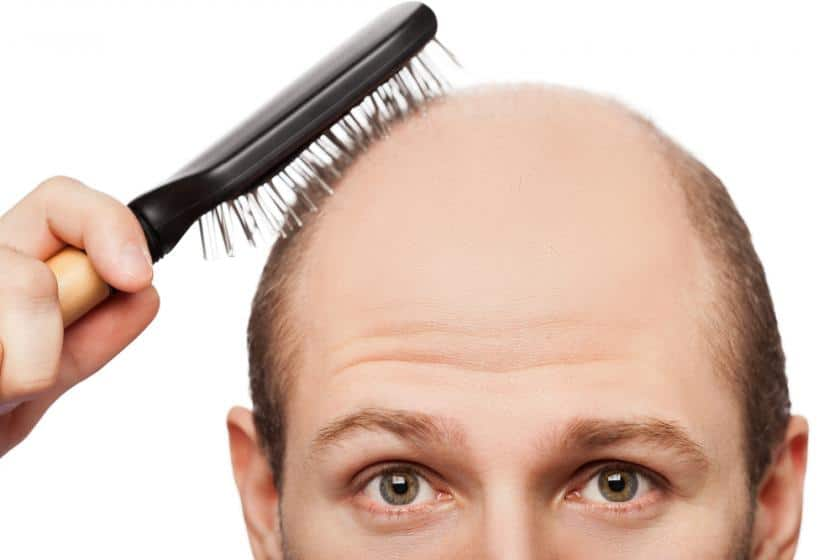 Why You Need a Hair Restoration Procedure