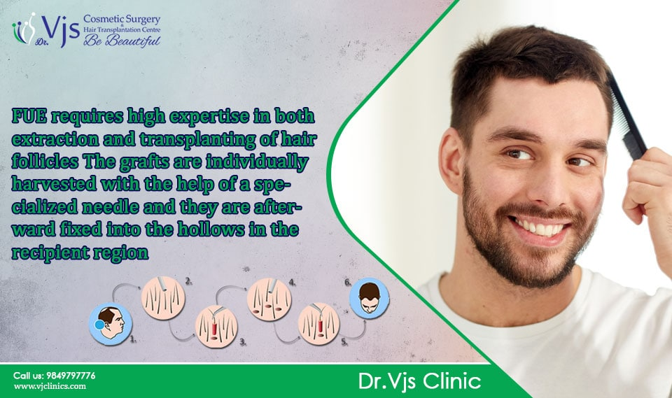 Before a hair transplant, here is a guideline for it.