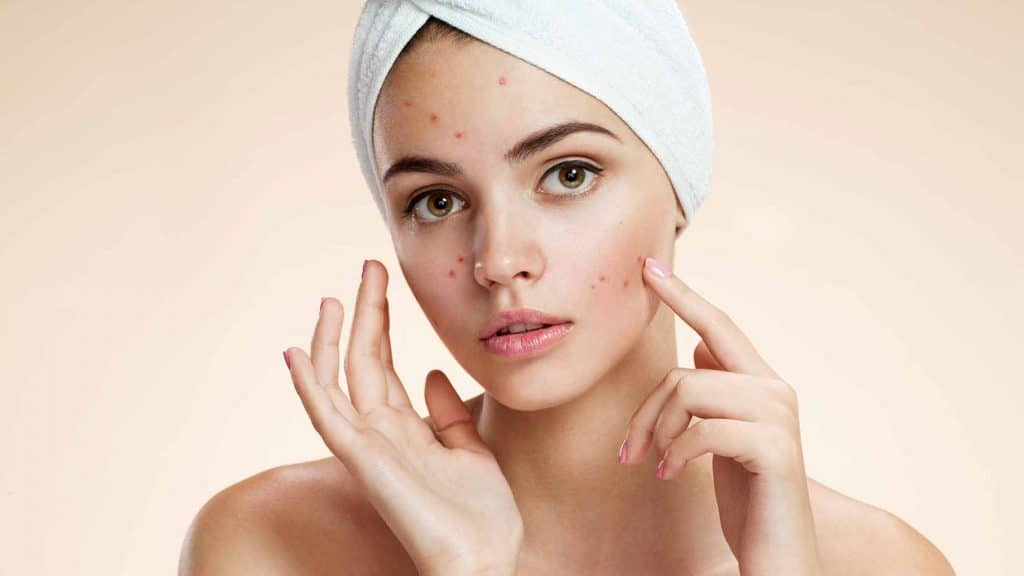 Acne Causes, Prevention, Treatment, and all about it