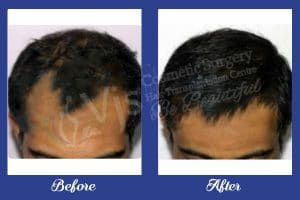 Hair Transplant before and after photos of Results in India