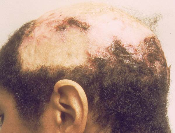 Cicatricial Alopecia and the Available Solution