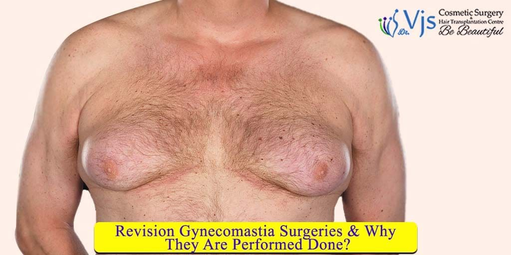 Revision Gynecomastia Surgeries & Why They Are Performed?
