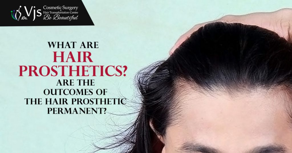 What are Hair Prosthetics? Are the outcomes of the Hair Prosthetic permanent?