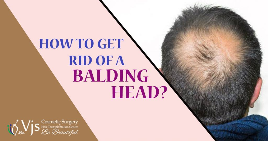 HOW TO GET RID OF A BALDING HEAD?