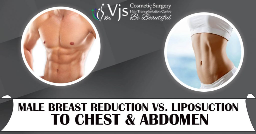 Male Breast Reduction VS. Liposuction to Chest & Abdomen
