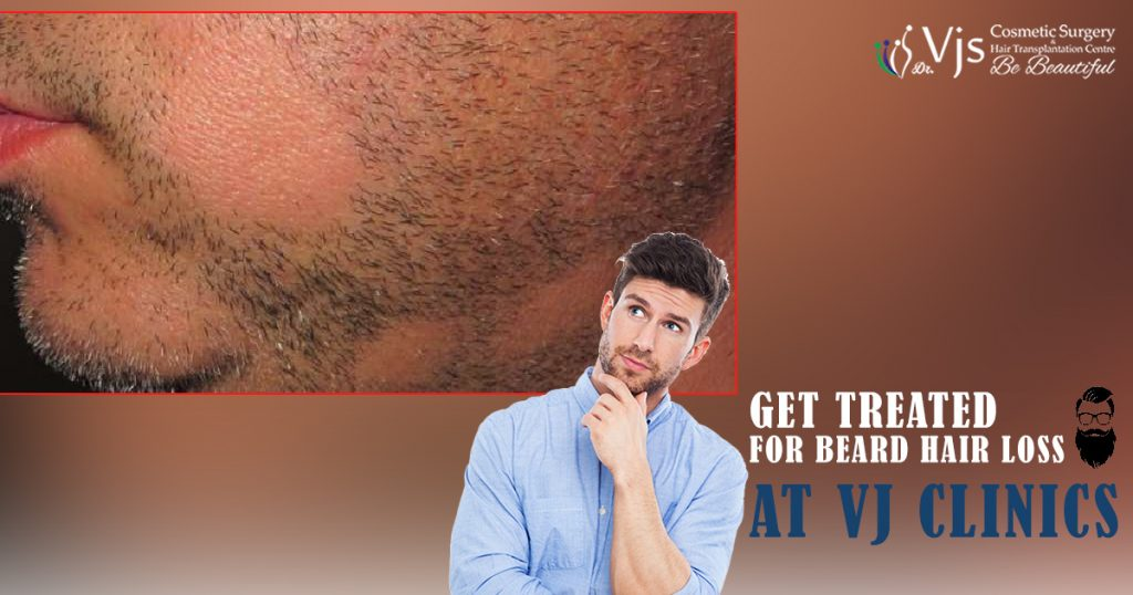 Five Frequently Asked Questions About Beard Hair Loss which offer the ultimate information