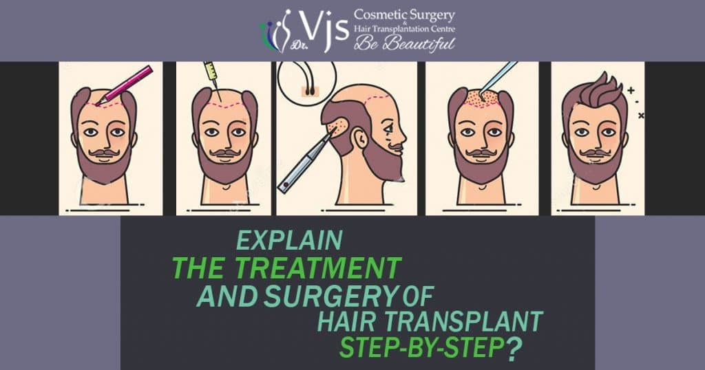 Hair transplant: Explain the treatment and surgery of hair transplant step-by-step?