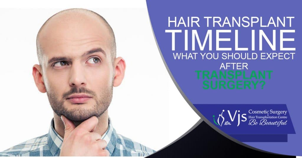 Hair Transplant Timeline: What you should expect after the transplant surgery?
