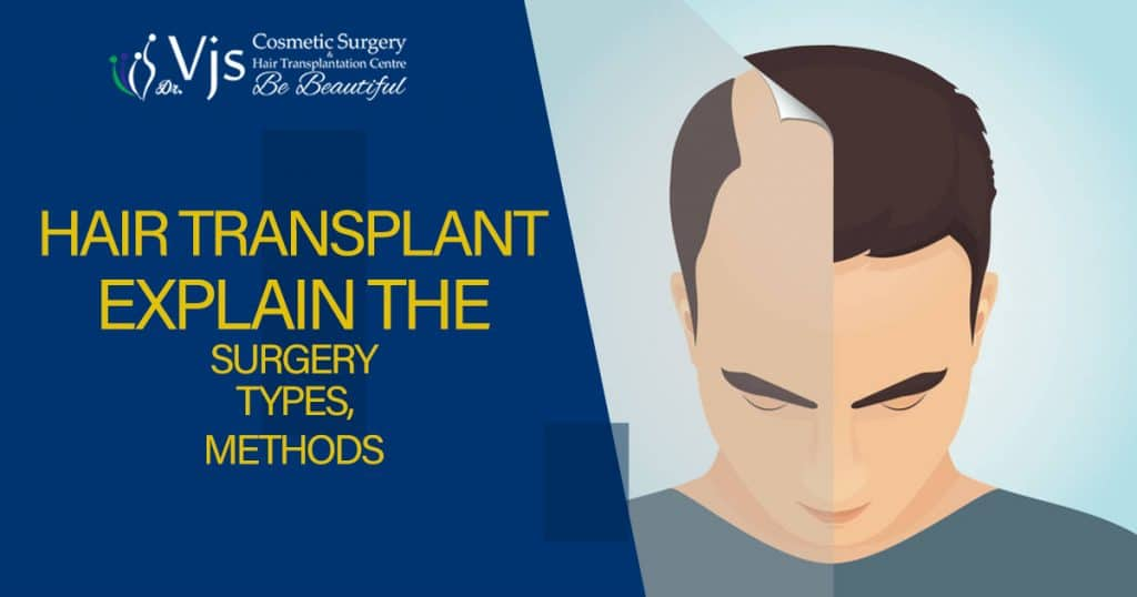 Hair transplant: Explain the surgery, types, methods, and cost associated with the treatment?