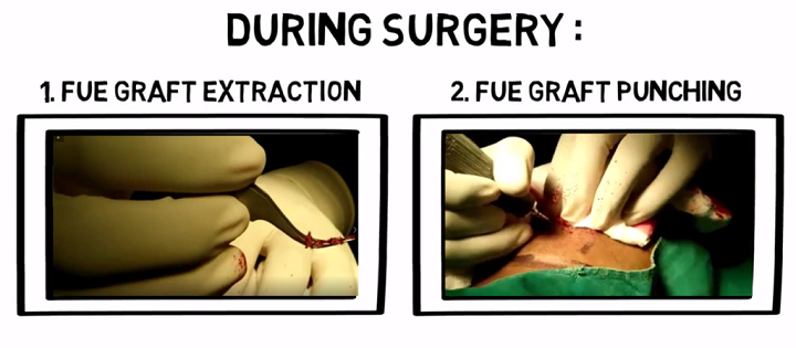 Live-Procedure-of-the-FUE-Hair-Transplant-Surgery-in-India-at-VJ-Clinics-YouTube