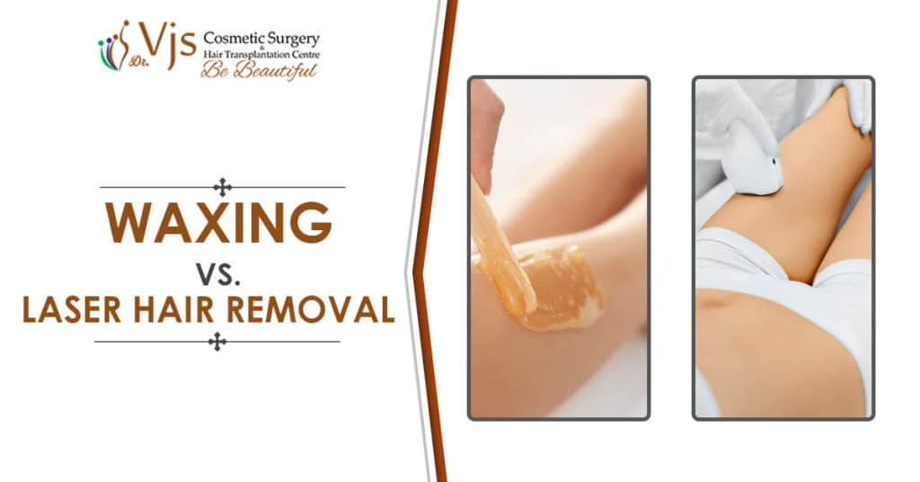 Looking for a better alternative between the two – Waxing and Laser hair Removal?