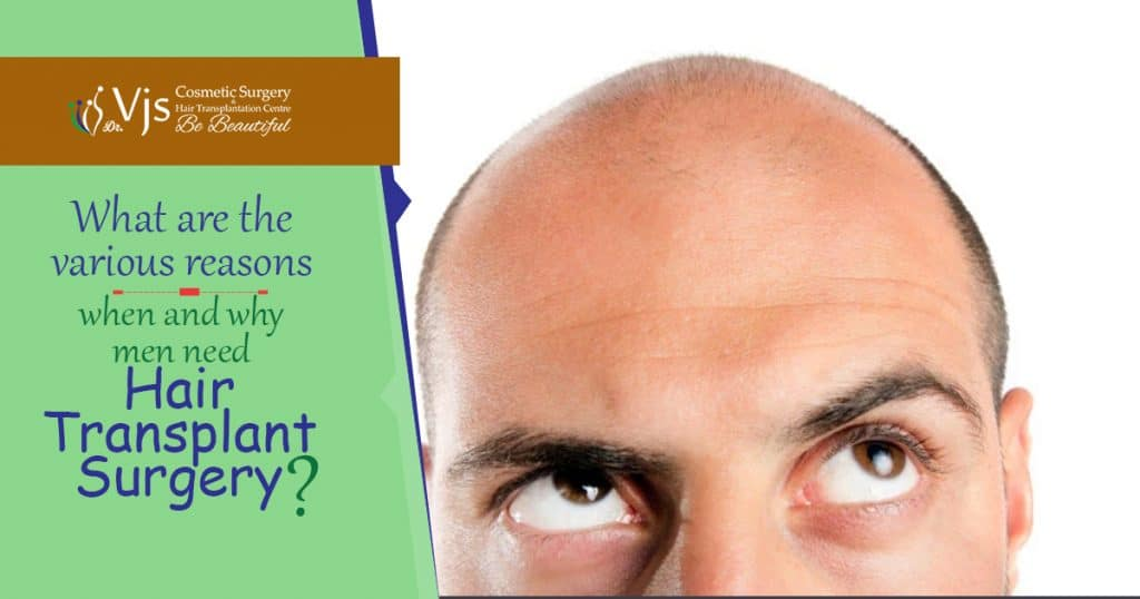 What are the various reasons when and why men need Hair Transplant Surgery