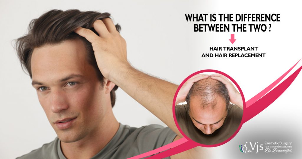 What is the difference between the two – Hair Transplant and Hair Replacement?