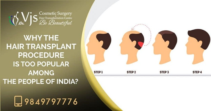 Why the hair transplant procedure is too popular among the people of India?