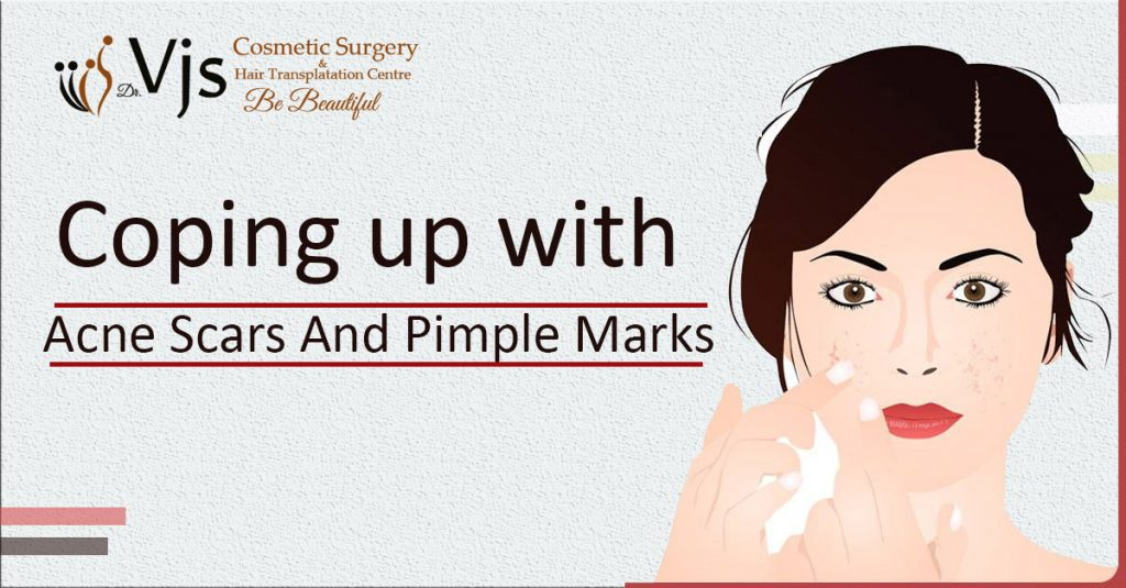 Acne Scars & Pimple Marks: How to treat Acne Scars and Pimple Marks?