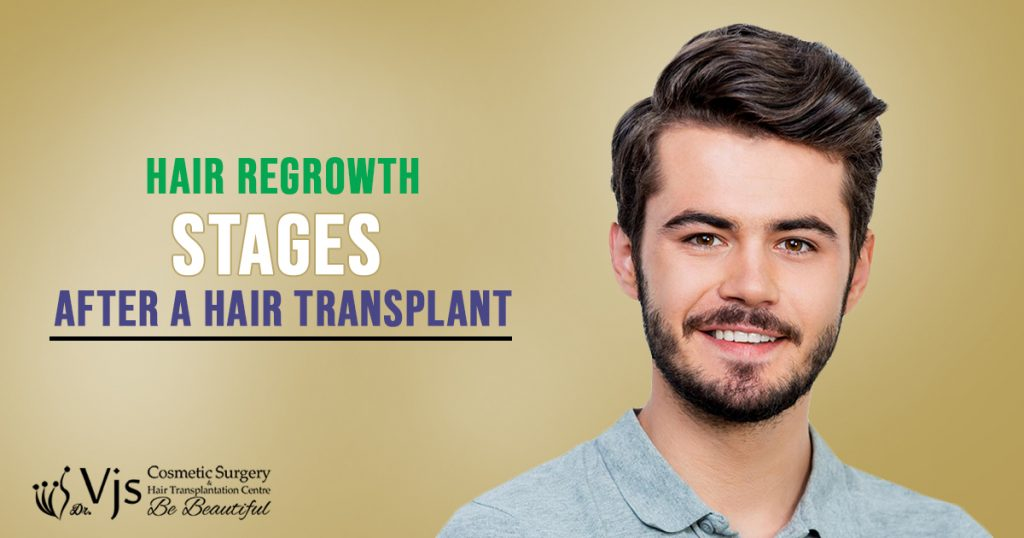 Hair Transplant surgery: Explain the hair regrowth stages after a Hair Transplant?