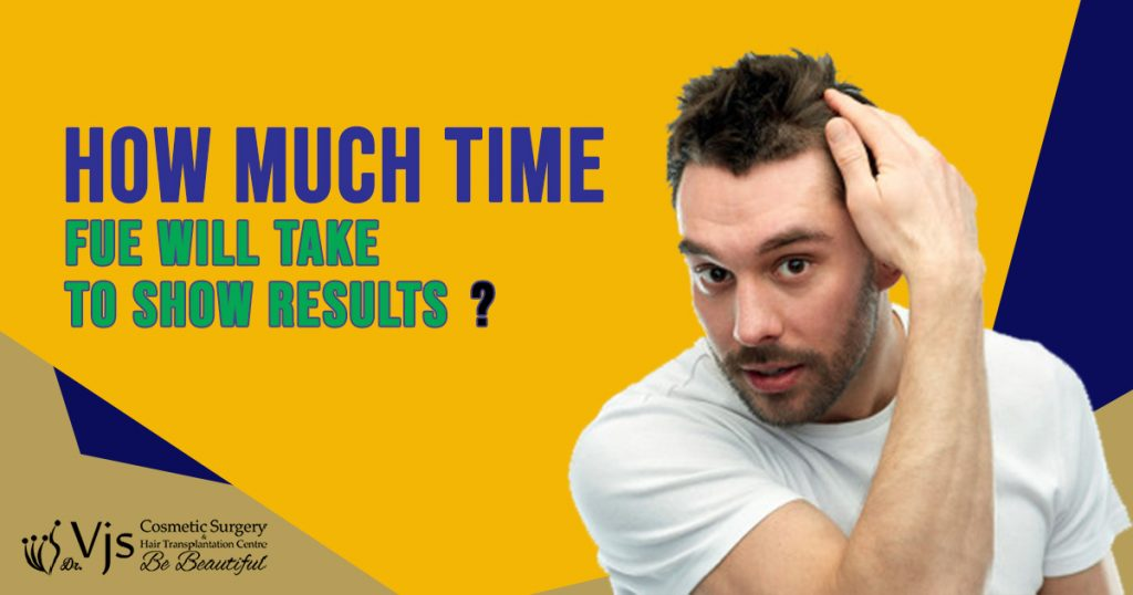 FUE: How much time we need to wait to see results after FUE hair transplant?