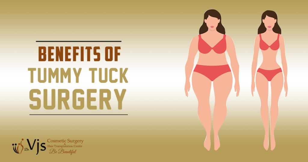 What are the different medical benefits of getting tummy tuck surgery?
