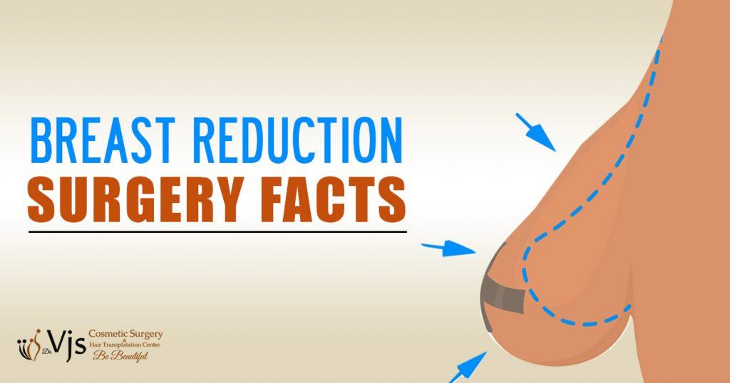 Explain some important facts about getting a Breast Reduction surgery?