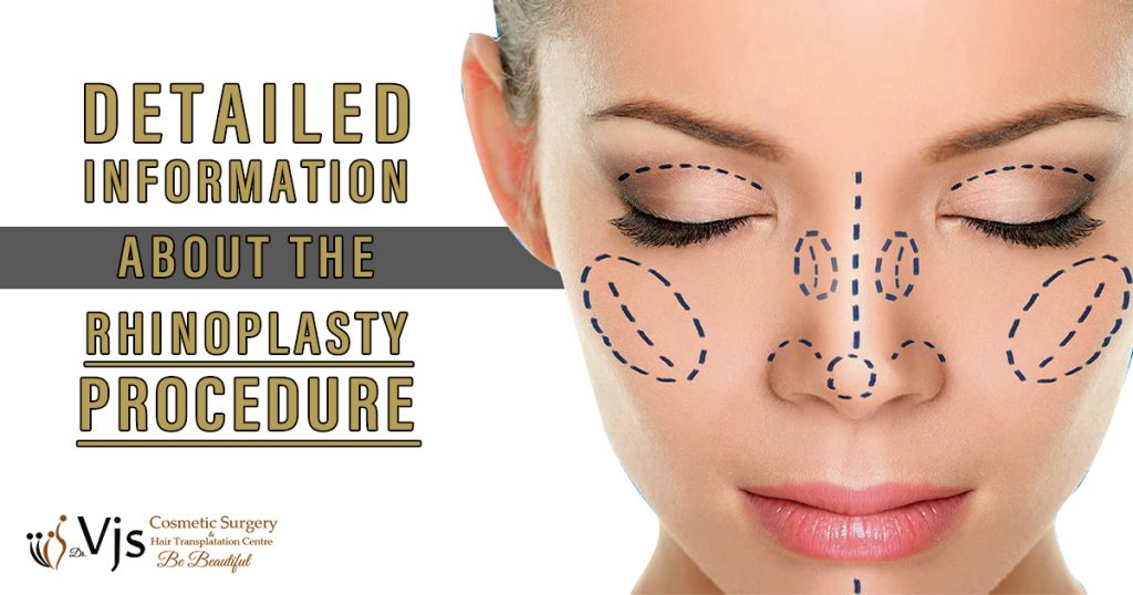 Rhinoplasty Surgery: What is the purpose, procedure, risks, and recovery of Rhinoplasty?