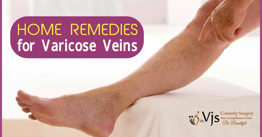 Top 10 ways for treating the issue of Varicose veins with home remedies