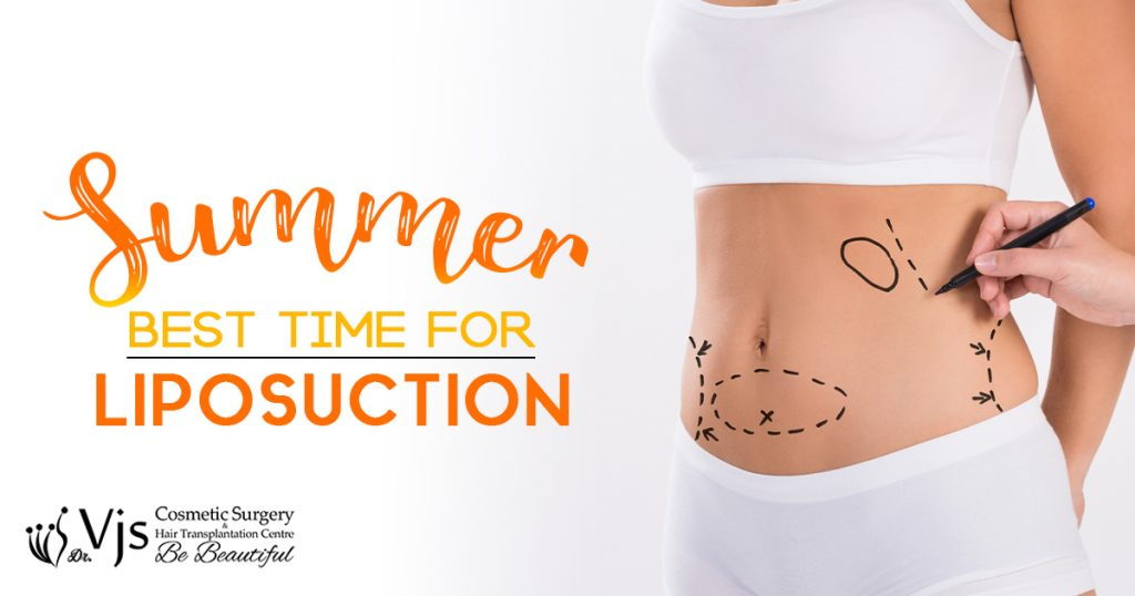 Liposuction Surgery: Why the demand for liposuction surgery is more during the summers?