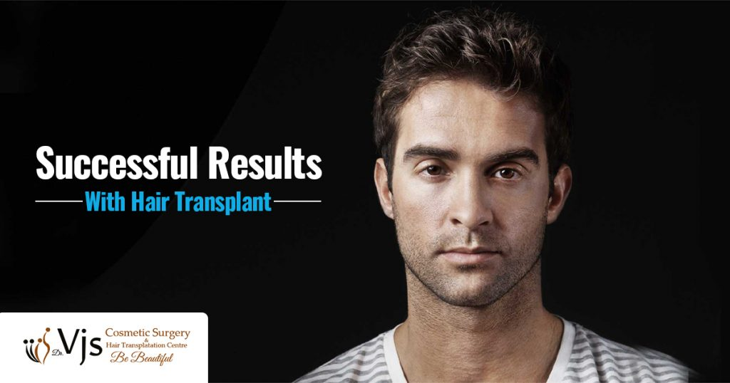 Successful-results-with-hair-transplant-1024x538