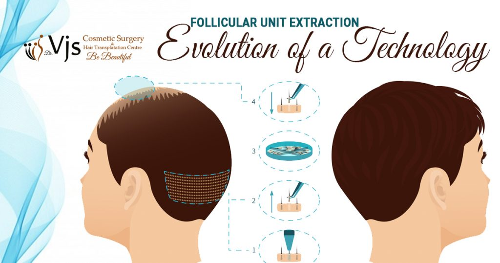 Follicular Unit Extraction: Evolution of a Technology