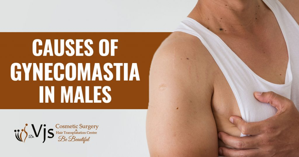 Explain the reasons which contribute to Gynecomastia condition in males?