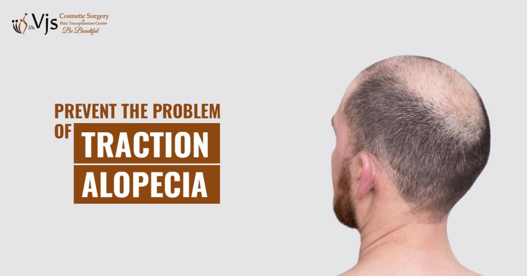 What is traction alopecia and how to prevent this problem in Sikhs?