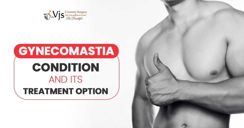 Gynecomastia-condition-and-its-treatment-option-1024x538