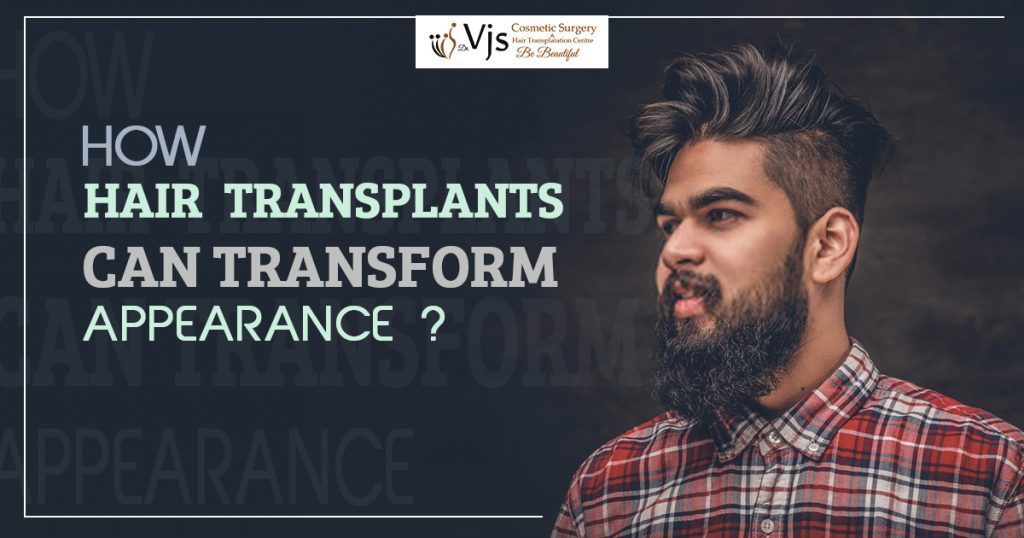 How Hair Transplant Can Change your Look
