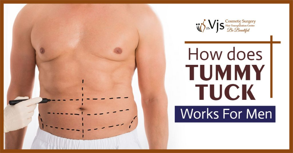 How does tummy tuck work for men