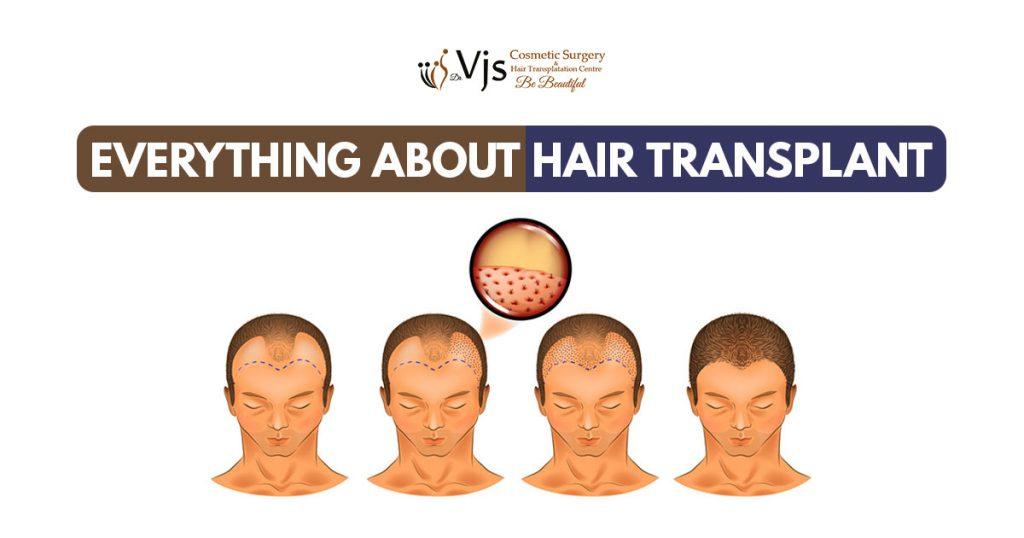 Know How Subhash Sharma gets Successful Hair transplant