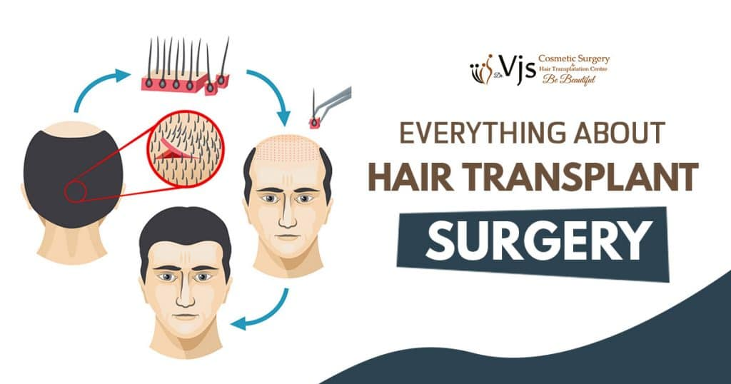 What is a hair transplant surgery? Explain the Types and Process of hair transplantation?