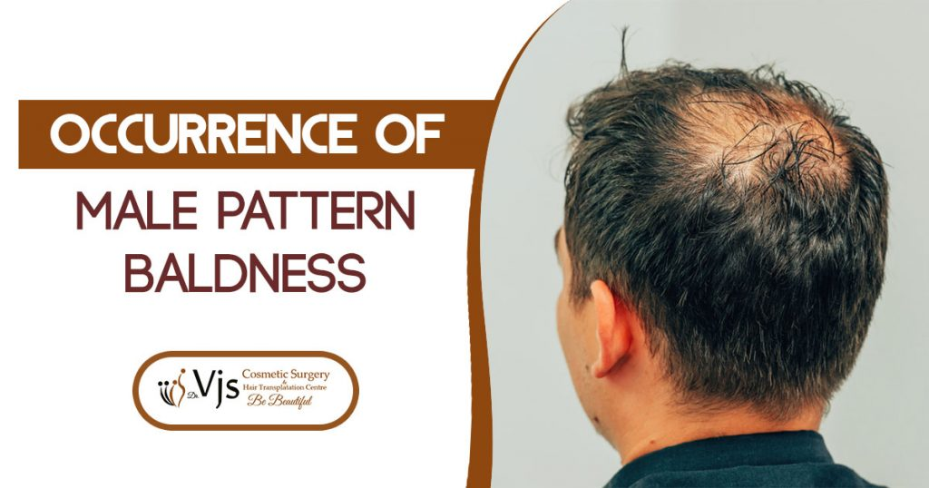 Are You Worry About The Occurrence Of The Male Pattern Baldness?