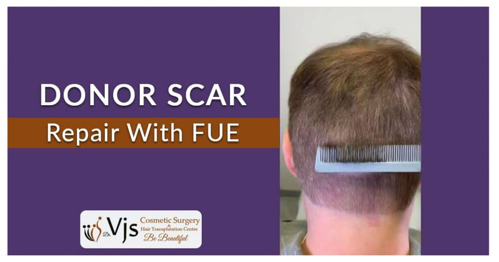 How FUE hair transplantation treatment is helpful to repair the scars?