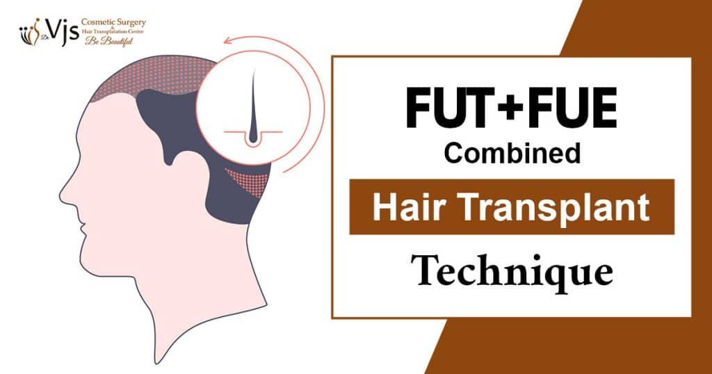 FUT + FUE Combined Hair Transplant Technique Vizag
