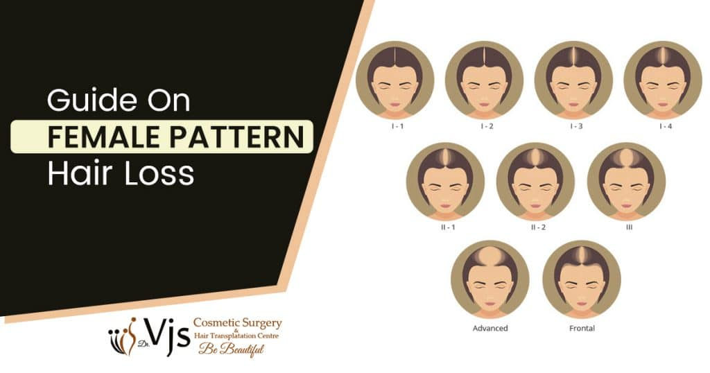 Does Female Pattern Hair Loss Result In Thinning Hair And Hair Loss?