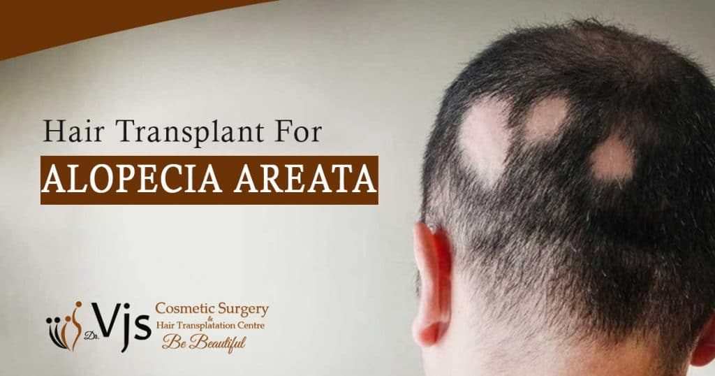 Is It Possible For Alopecia Areata Patients To Get Hair Transplantation?