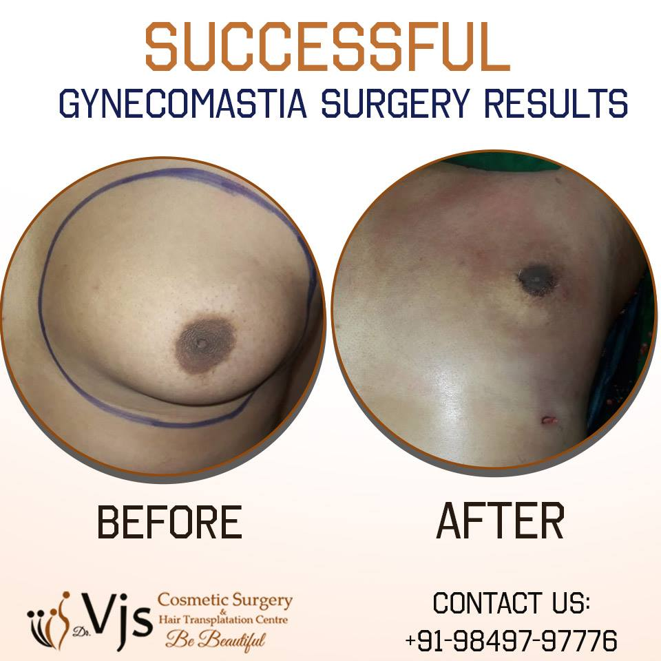 What is the difference between Gynecomastia and Pseudogynecomastia?