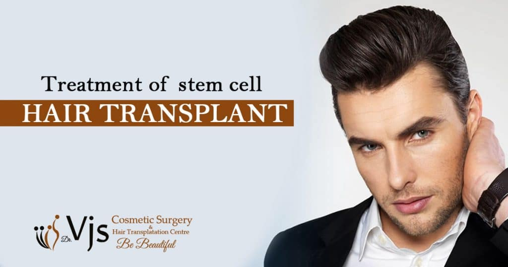 Everything You Need To Know About Stem Cells Hair Transplant Treatment
