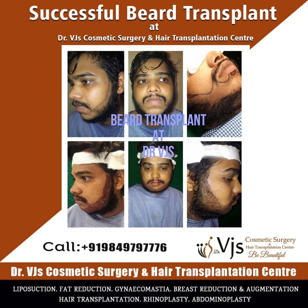 Reasons to harvest beard hair for hair transplantation (2)