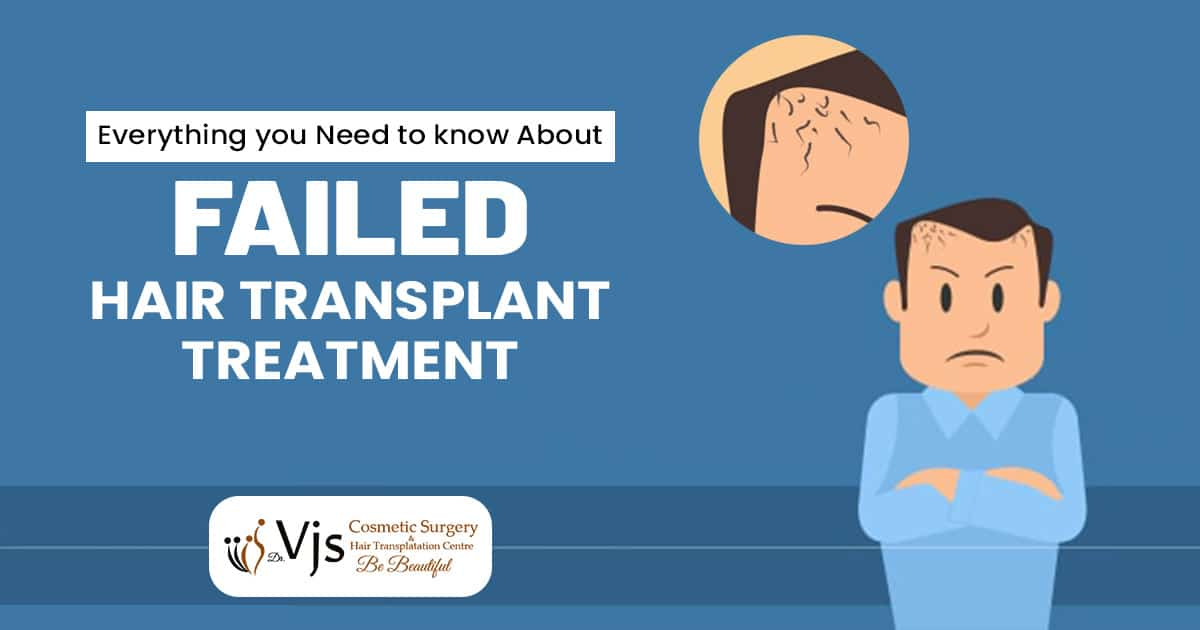 Everything you need to know about Failed Hair Transplant treatment