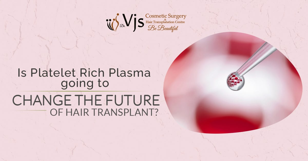 Is Platelet Rich Plasma going to change the future of Hair Transplant?