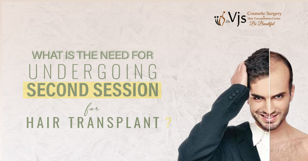 What is the need for undergoing the second session for hair transplant?