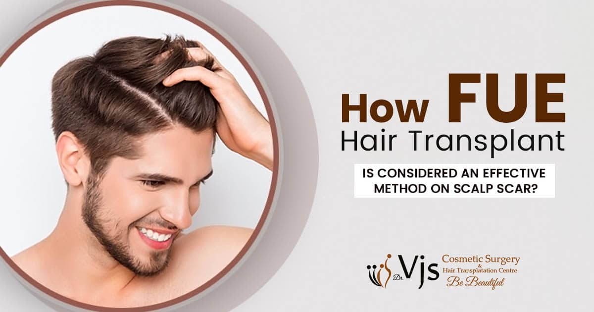 How FUE hair transplant is considered an effective method on scalp scar?