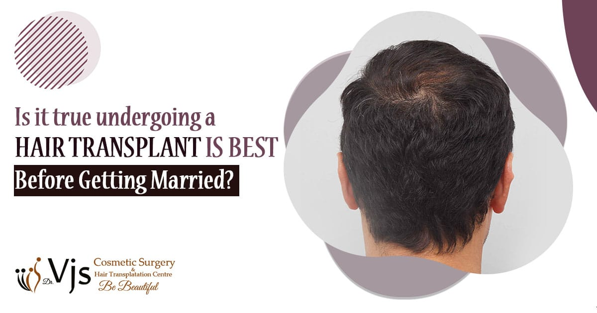 Is it true undergoing a hair transplant is best before getting married?