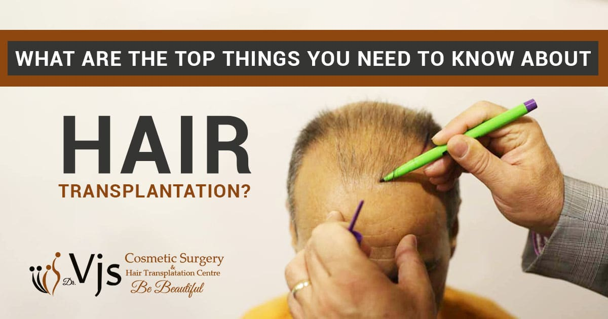 What are the top things you need to know about hair transplantation